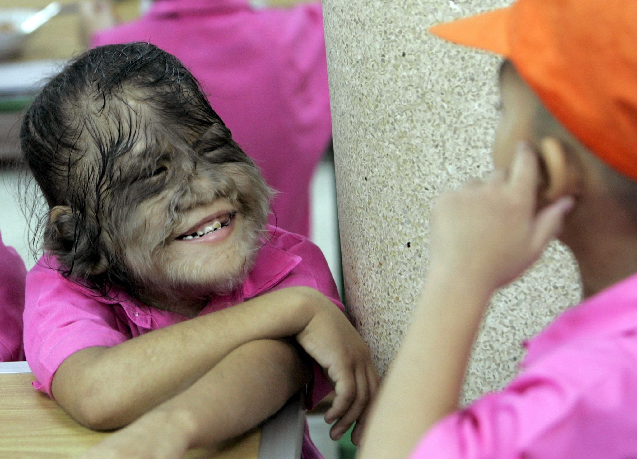 A child suffering from Hypertrichosis