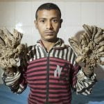Man with Epidermodysplasia Verruciformis disease